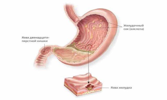 Рисунок с язвами желудка